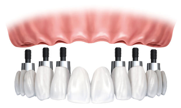 feature-implant-retained
